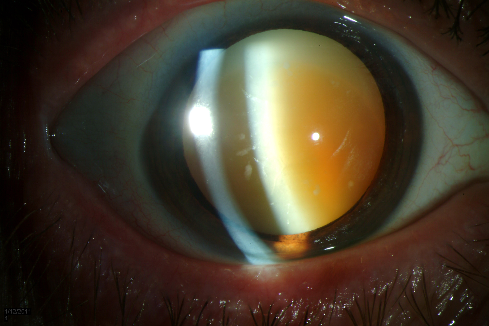 Mature nucler sclerotic cataract
