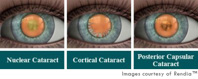 How To Diagnose And Grade Cataracts Eyeguru