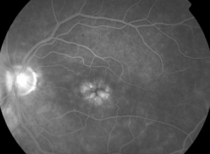 Petaloid leakage from cystoid macular edema