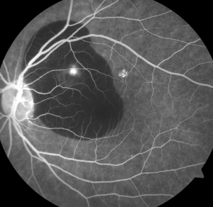 Blocking of choroidal hyperfluorescence from subretinal blood. You know it's subretinal because the retinal vessels are overlying the dark area.