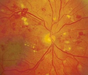 High-risk proliferative diabetic retinopathy