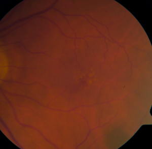 Dry AMD with a few large drusen