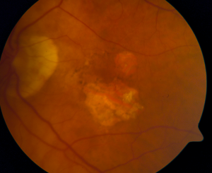 Dry AMD with geographic atrophy