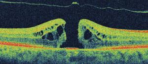 Macular hole with operculum
