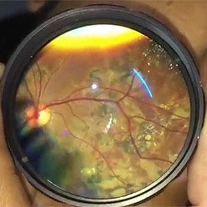Retina viewed via indirect