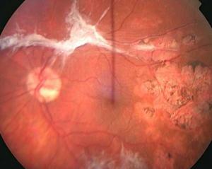 Tractional retinal detachment