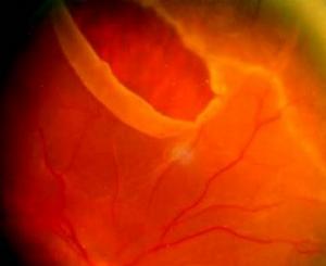 Horseshoe retinal tear