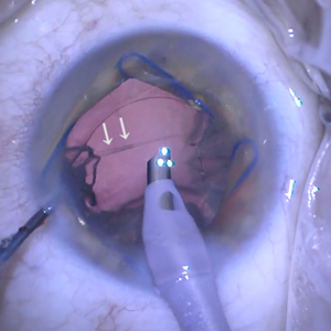 Posterior Capsule Rupture During Nuclear Disassembly Eyeguru